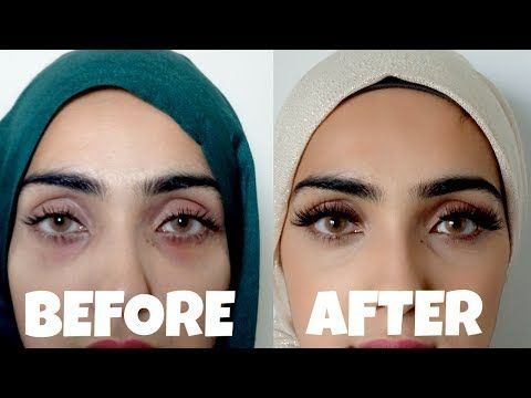How To Get Rid Of Purple Lines Under Eyes