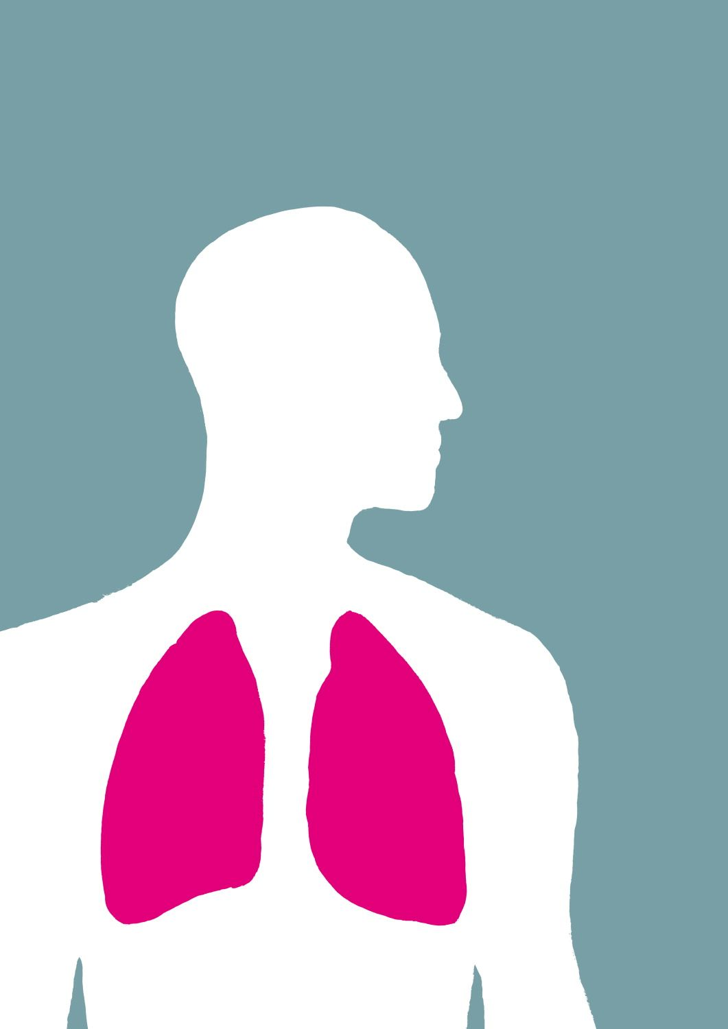 FIND OUT MORE - There are three main types of lung cancer; small cell lung cancer, non-small cell lung cancer and mesothelioma.  Go to our website for information about these different types and how they are treated: http://www.cancerresearchuk.org/cancer-help/type/lung-cancer/