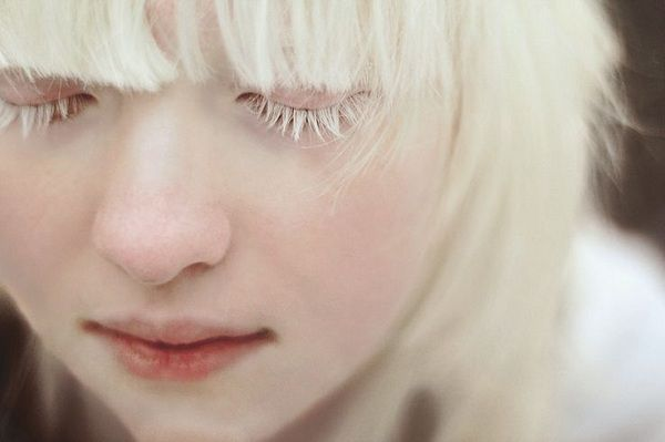 Atención temprana disminuye agudeza visual en albinos