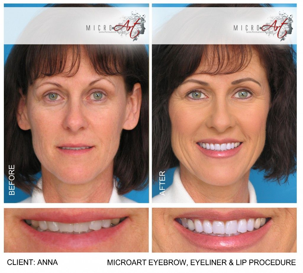 6db67dfdb fMicroArt Semi Permanent Makeup: 3 years? Natural lips look. Before and  After Photos of MicroArt Semi Permanent Makeup for Eyebrows & Eyeliner  ...