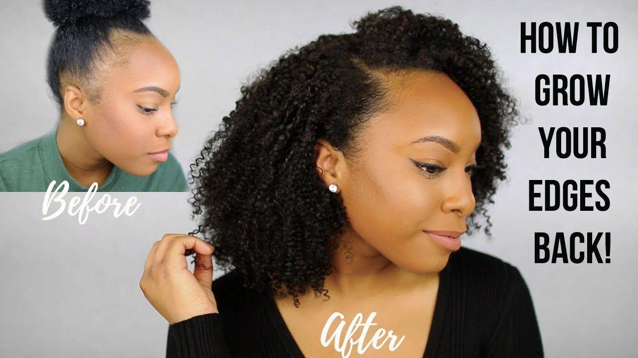 Why I Had Thin Bald Edges How I Grew My Edges Back Tips To Grow Fuller Edges Fast Youtu Natural Hair Styles Thin Natural Hair Natural Hair Flat Twist