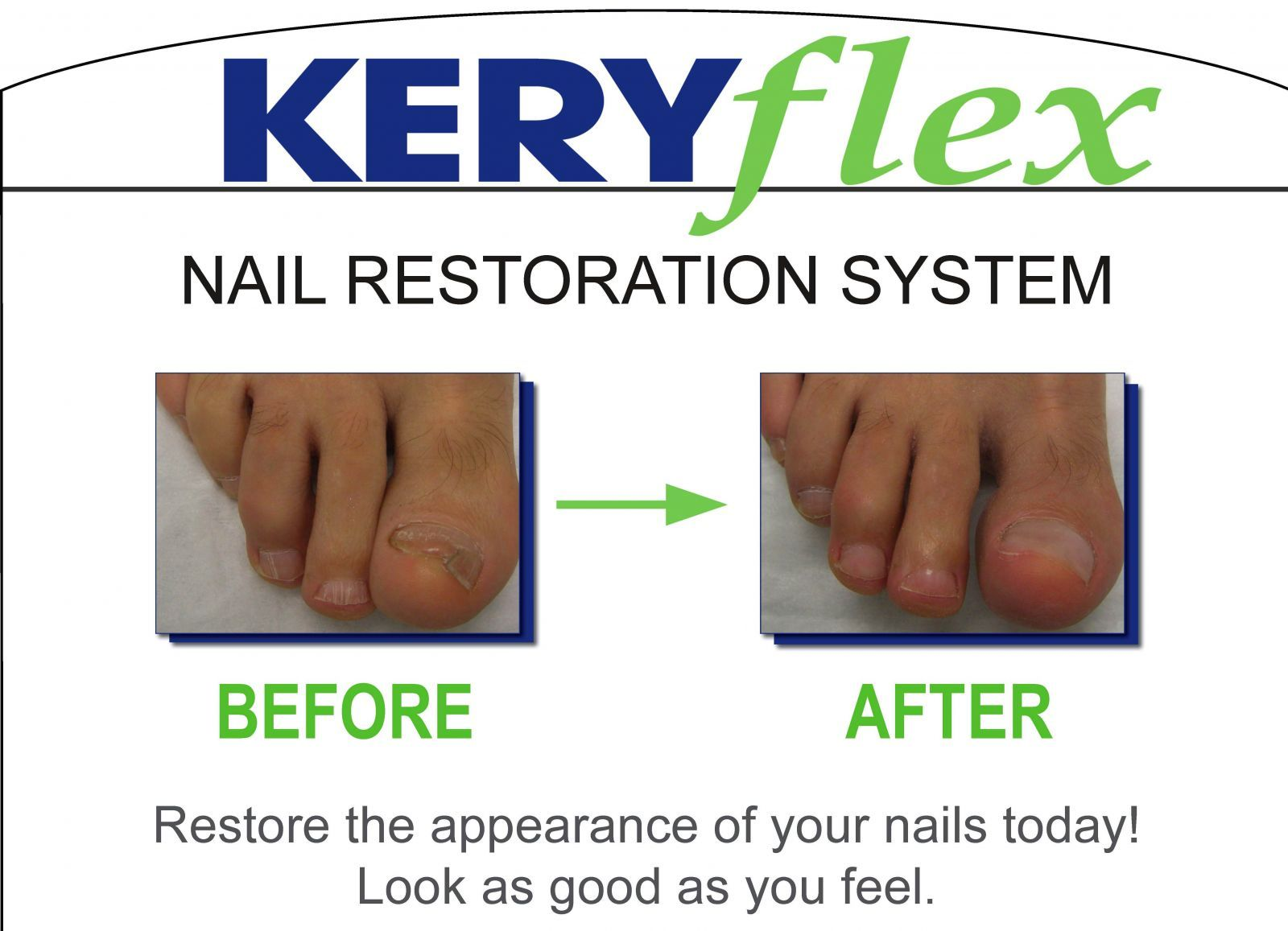 Did you know we offer keryflex nail restoration at an