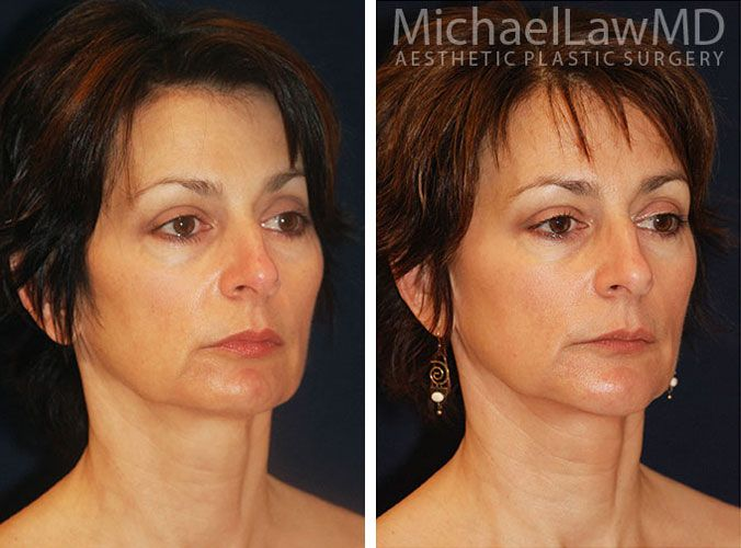 more photos 59b0d d962b Neck Liposuction   Chin Liposuction Photo Gallery - PG 1