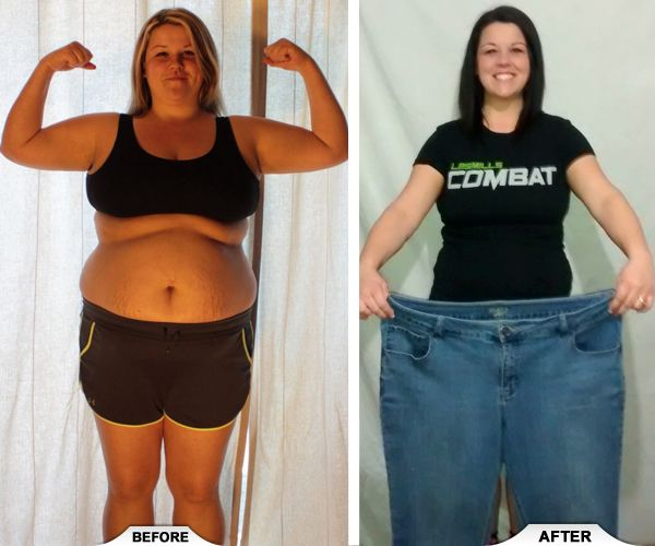 Weight loss surgery la crosse wi image 9