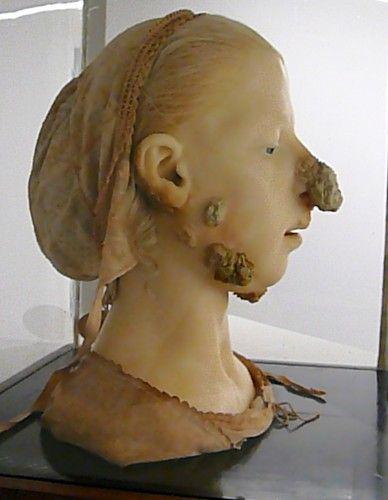 c5e8ce199510 1865 wax model of woman with tubercular scrofula