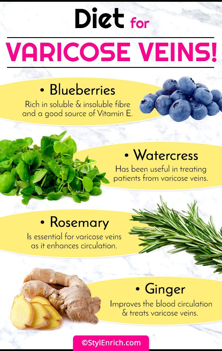 vitamin e and varicose veins