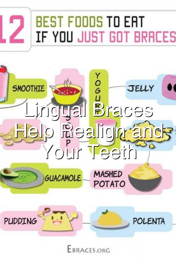 Lingual Braces Will Help Realign and Straighten Your Teeth#677