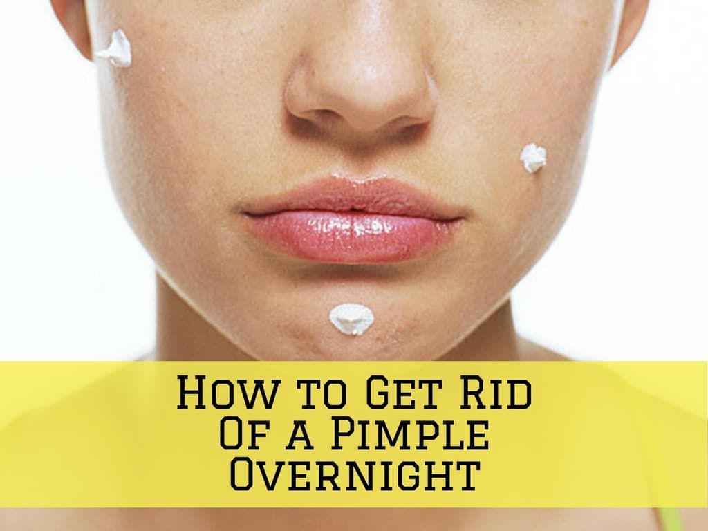 Home remedies for acne and pimples overnight