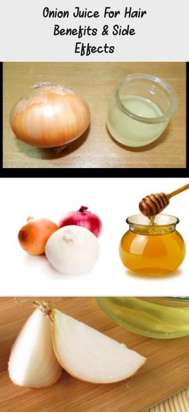 Vitamins for Hair Growth} and How to make onion juice for Hair Growth. #kacy #kacyworld #kacyblog #hairgrowth #haircare #hairgrowthLength #Newhairgrowth #Biotinhairgrowth #hairgrowthRemedies #hairgrowthProgress