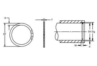 The Metric vs Inch debate: Retaining rings weigh in