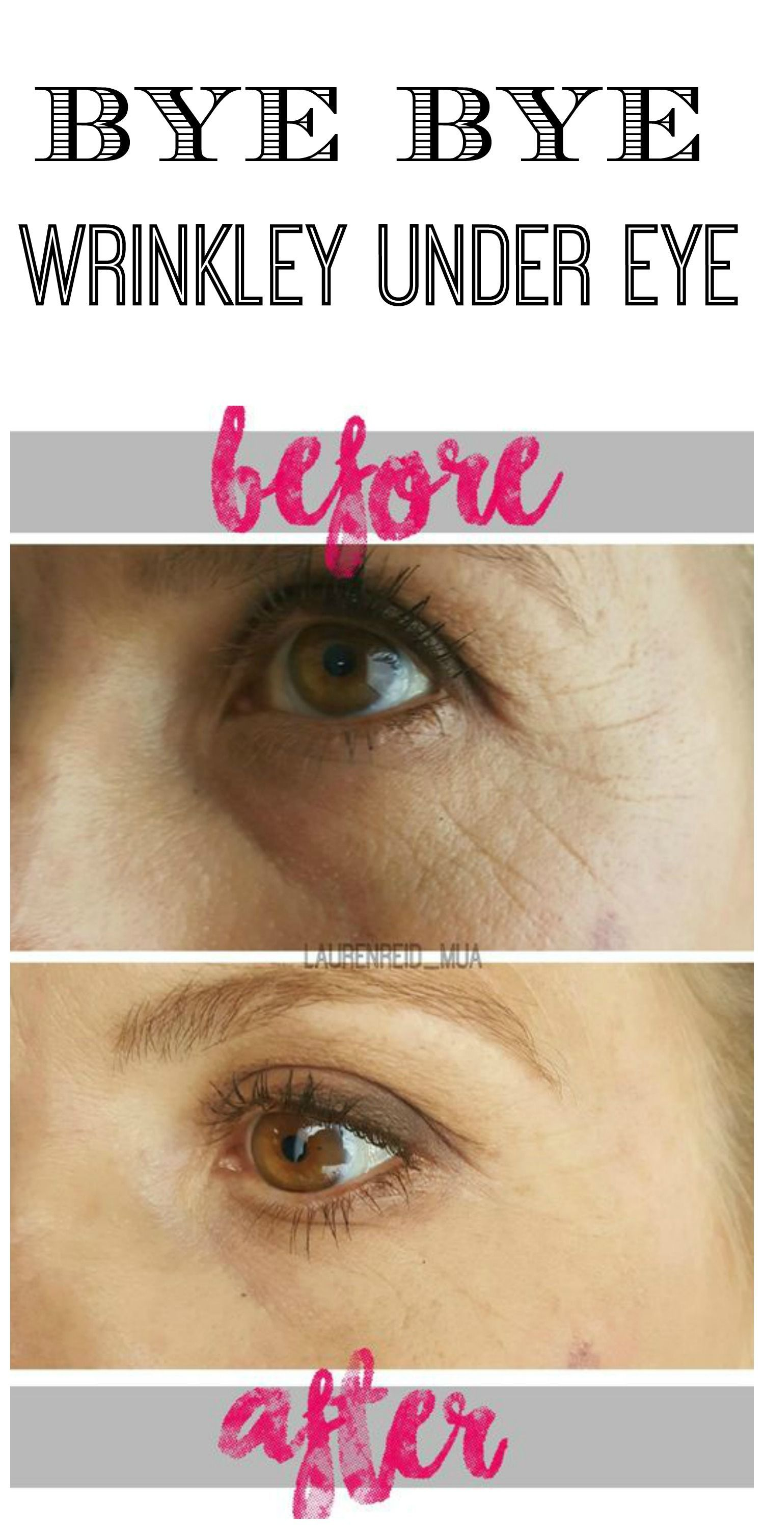 How to quickly remove wrinkles under the eyes