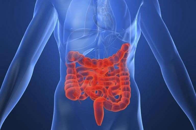 ما أسباب مرض كرون وما مدى خطورته In 2021 Crohns Colitis Holistic Center