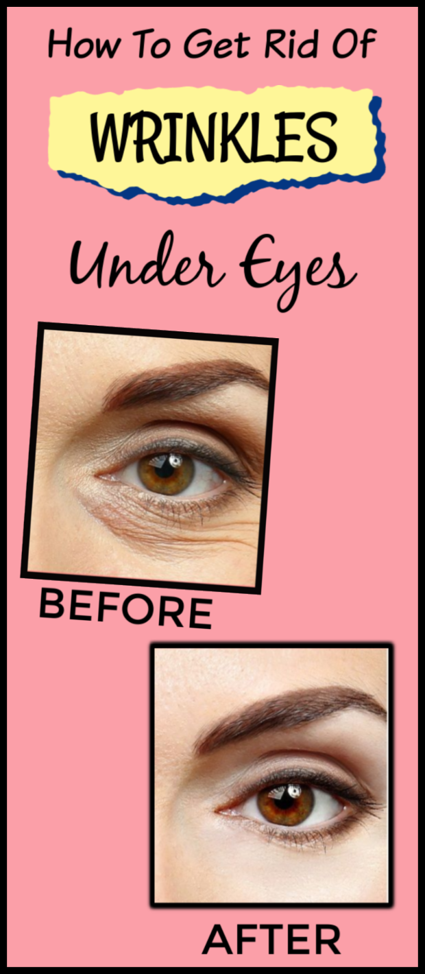 How to get rid of wrinkles under eyes Under eye wrinkles