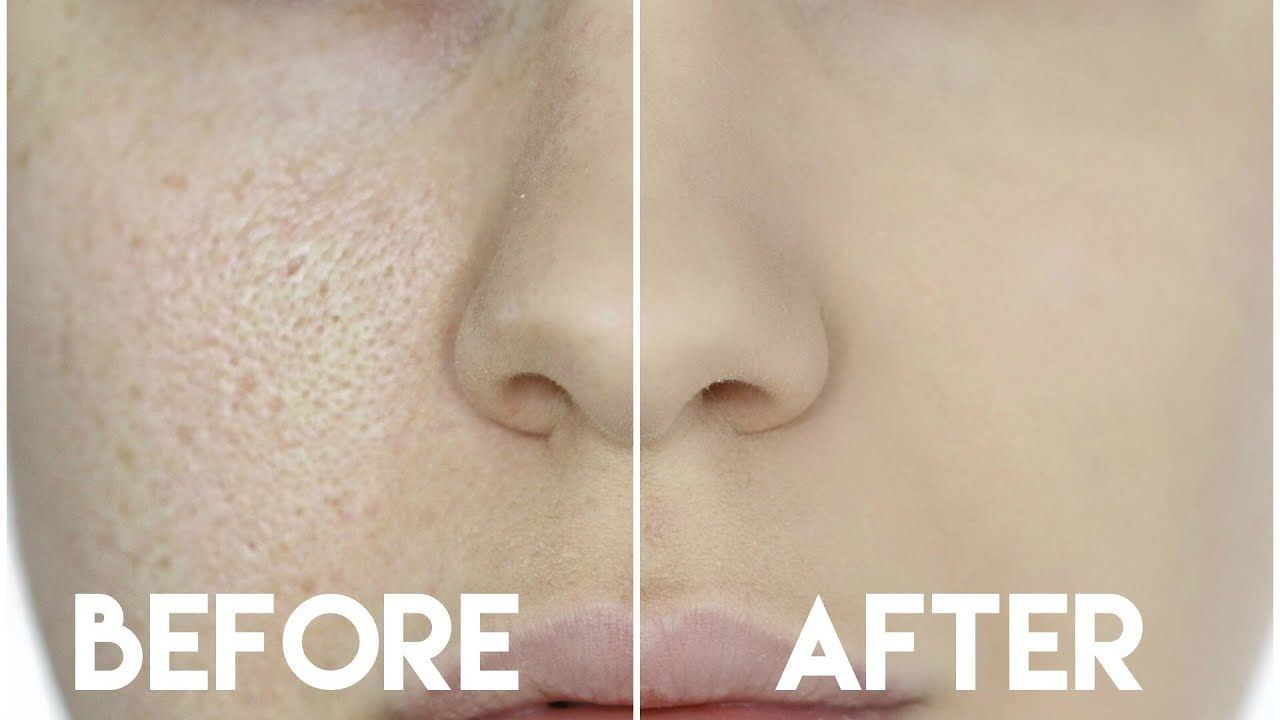 large pores and dry skin