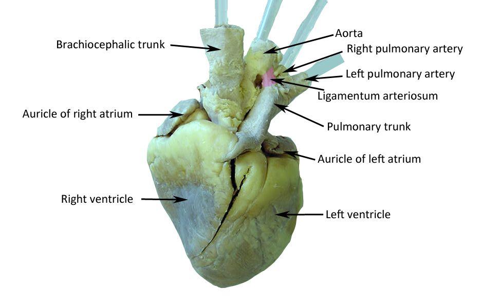 Rezultat slika za sheep heart labeled | Arteries ...