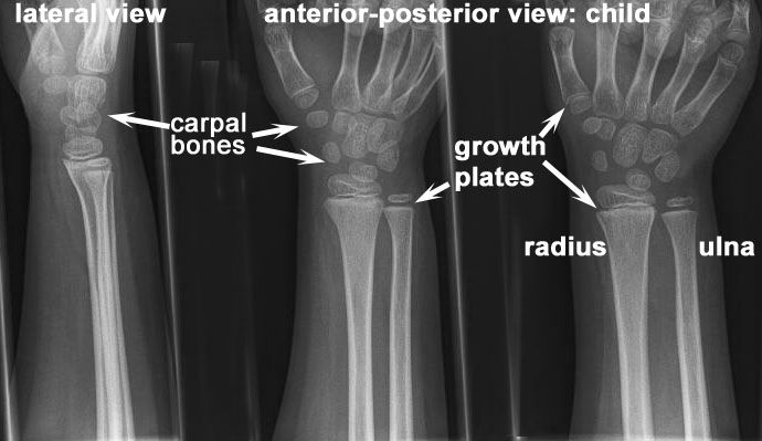 Normal Child Xray Normal Wrist Joint Child X Ray Becoming A