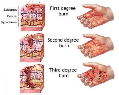Degrees Of Burns Burns Treatment Burn Injury Nursing Care Plan