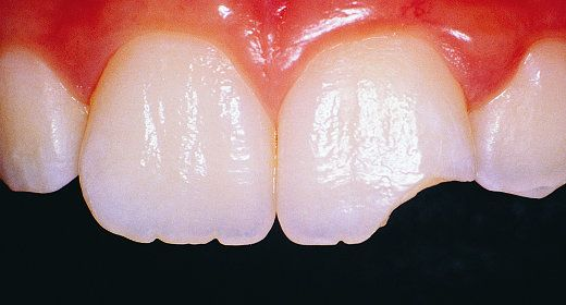 The Daily Grind -- What Wears Down Your Teeth   Chipped ...