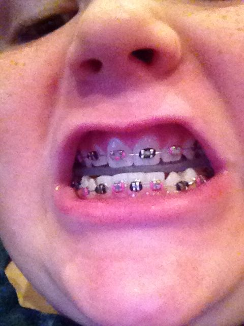 essay on getting braces