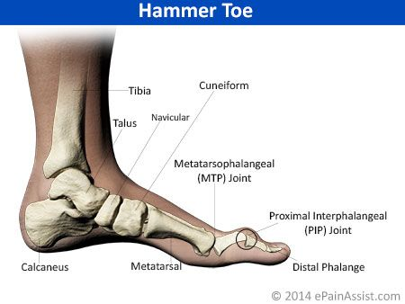 Foot Pain Its Anatomical Distribution Foot Paincauses