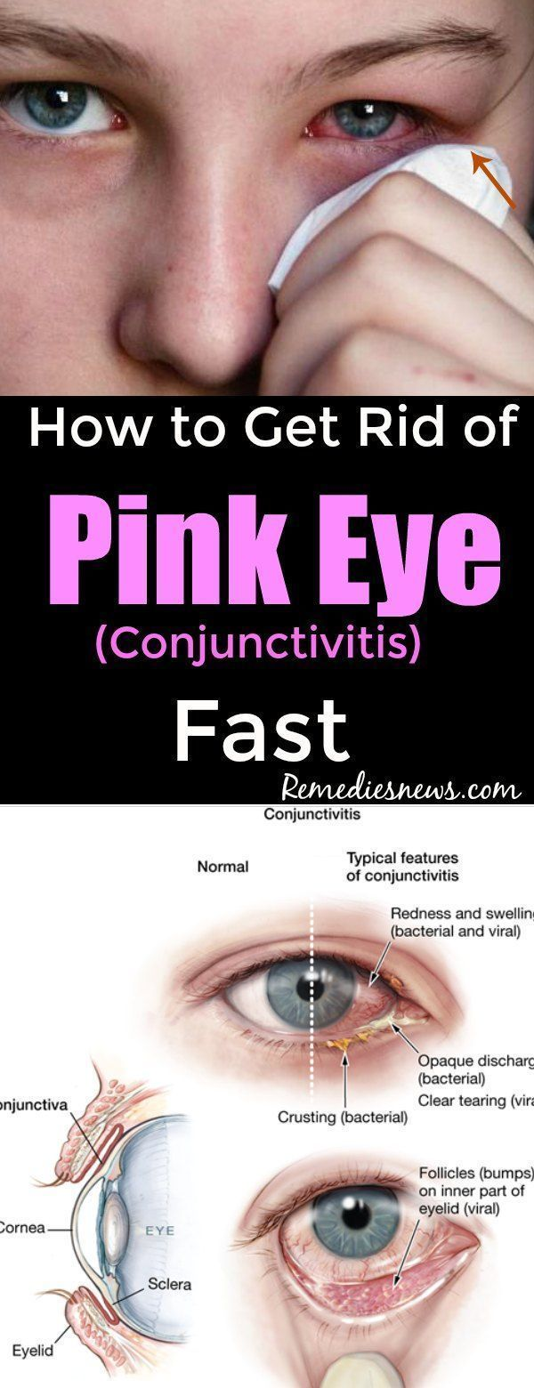 How To Get Rid Of Pink Eye Conjunctivitis Fast With Images