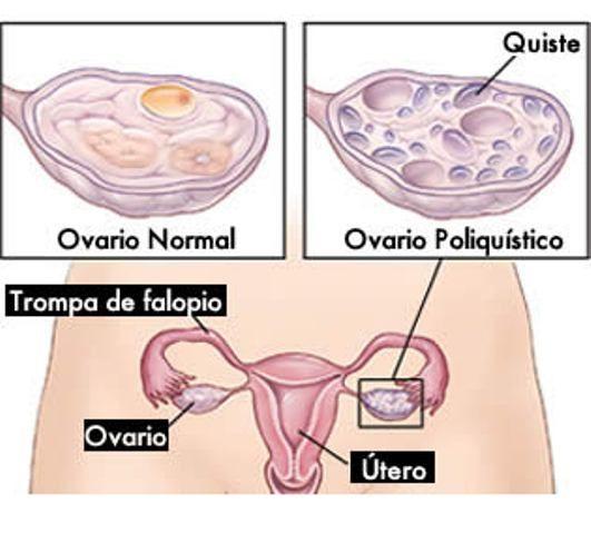 ovarios poliquisticos y bajar de peso