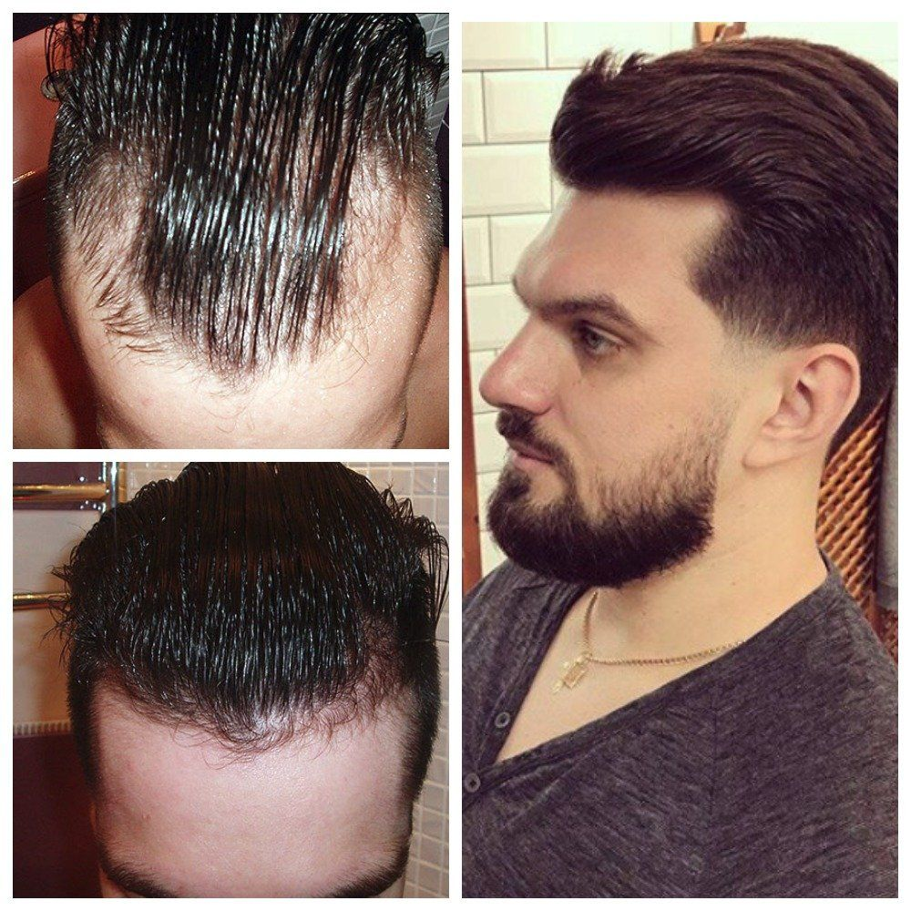 my hair rescue experience: how i stopped baldness! | hair in