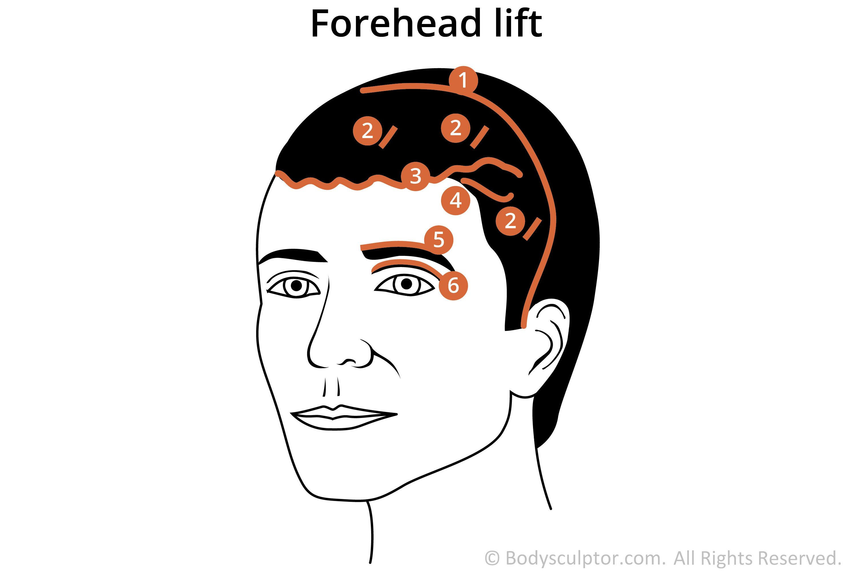diagram of brow forehead lift incision locations [ 2988 x 2019 Pixel ]
