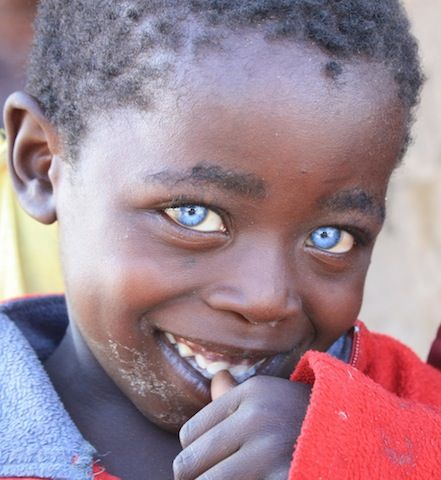 أطفال افارقة بعيون زرقاء العقل السليم Black With Blue Eyes Bright Blue Eyes Sapphire Eyes