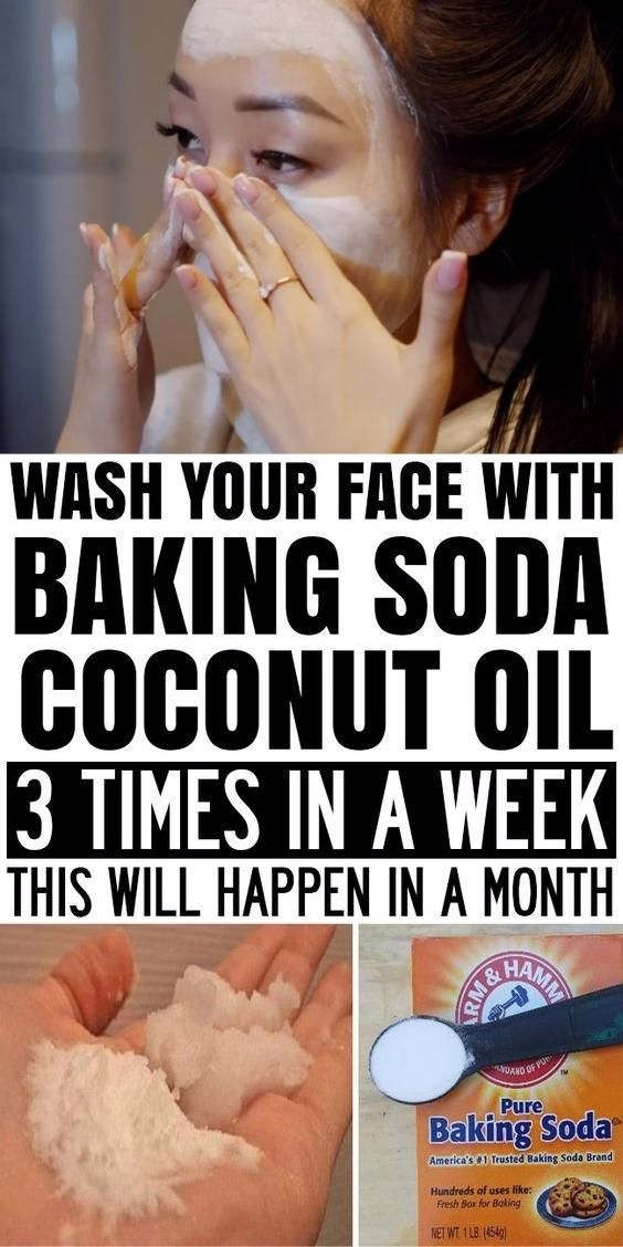 Apply This Coconut Oil And Baking Soda 3 Times A