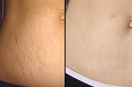 Home Remedies For Stretch Marks That Work Surprisingly Well Save For Later Health And Beauty Stretch Mark Remedies Stretch Marks