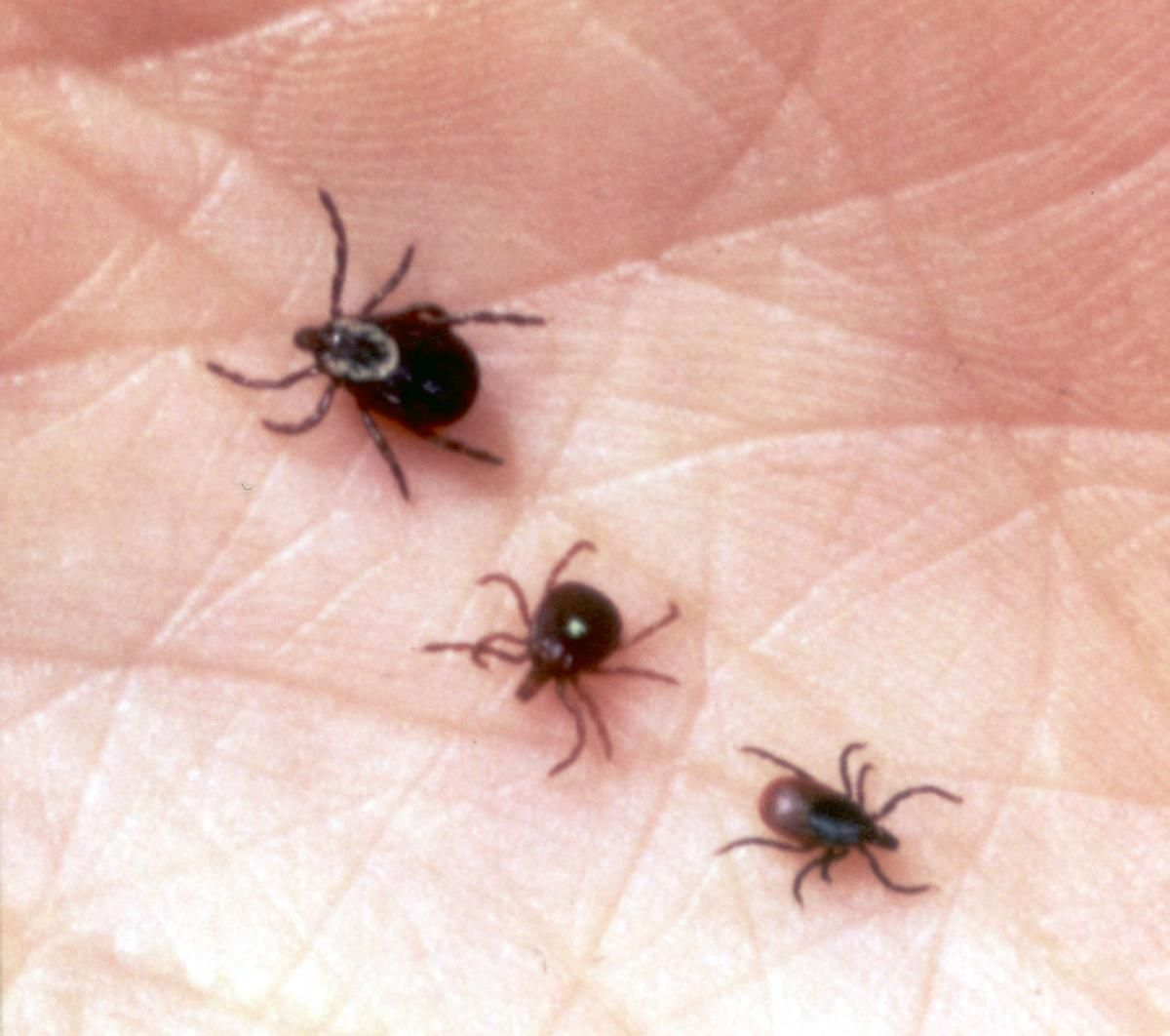 how to remove a tick head stuck in skin
