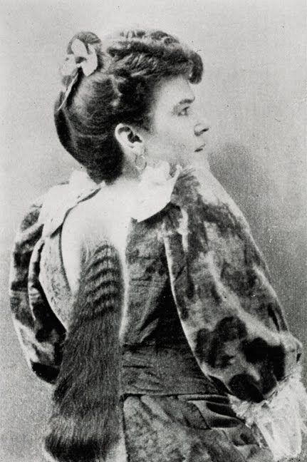 ca. 1896, a photograph of a woman with a form of naevus pilosus, a condition in which hair grows atop a mole