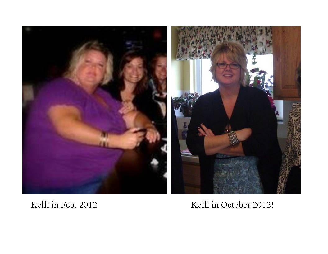 My friend Kellie...this is 8 months and at 12 months she was down a total of 96 lbs! Way to go Kellie!! I love that you did not have to start exercising until Month 11!! Whoop Whoop! LOVE IT!!