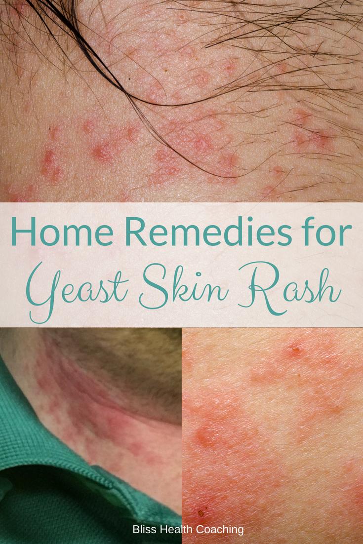 3e7a082b6e2e57ffd17c1dfdb427681f - How To Get Rid Of Yeast Infection In Skin Folds