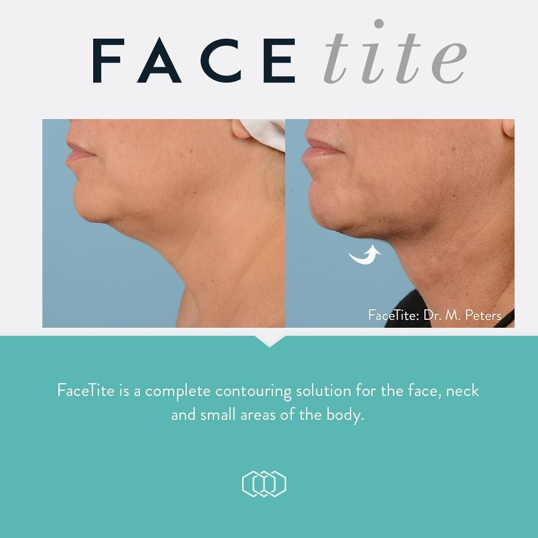 Check out this NECK 😍📸 #FaceTite provides dramatic improvement in