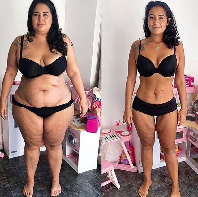 These Weight Loss Transformations Are Inspiring Ev