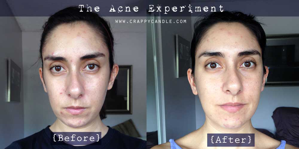 I Didn't Wash My Face for a Month - The Acne Experiment