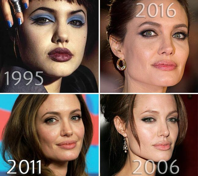 Angelina Jolie Cheeks Before And After Photo Angelina Jolie Plastic Surgery Plastic Surgery Angelina