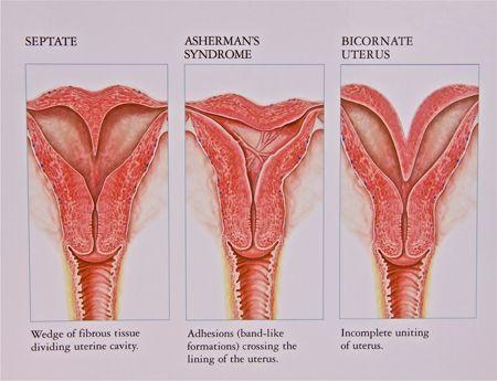 Class V (septate uterus) vs Class VI (arcuate uterus) | Mullerian ...