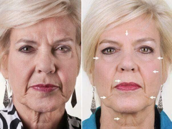 Facial Spa - AKA Wrinkle Iron (includes one Conductive Gel ...