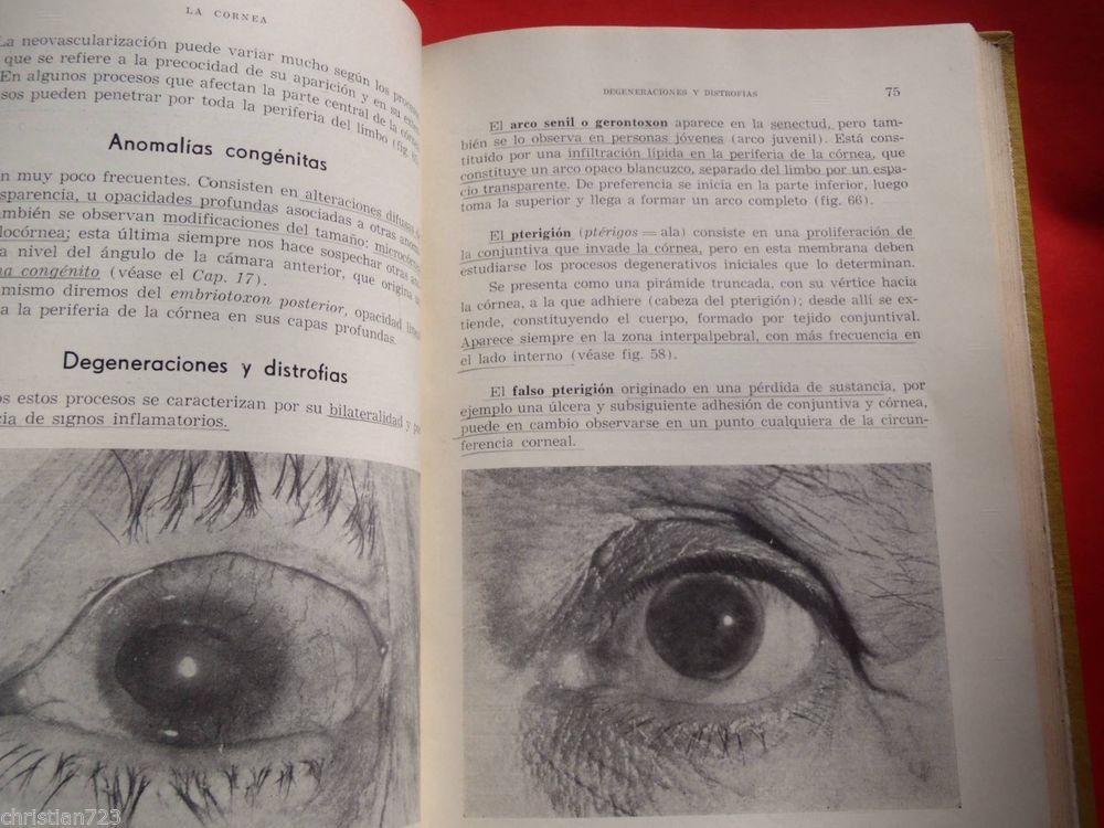 1965 ELEMENTOS DE OFTALMOLOGIA OPHTALMOLOGY  XRARE ARGENTINA NUMBERED EDITION