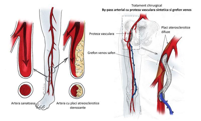 boala arterială și venoasă periferică