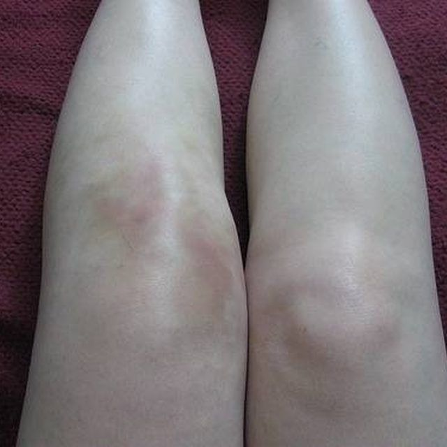 3e90b3a8e43d22b3da00a88a4ce63586 - How To Get Rid Of Swelling And Fluid In Knee