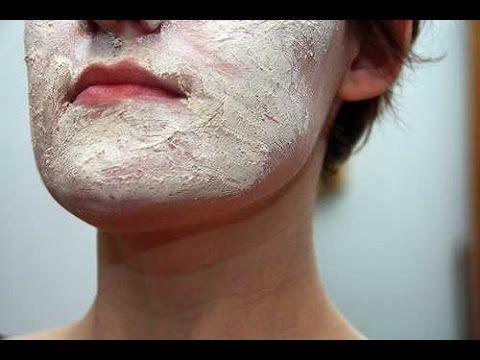 Atopic eczema face treatment
