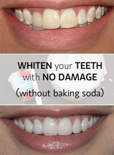 Whiten Teeth Fast And With No Damage Salud Teeth Whitening Diy