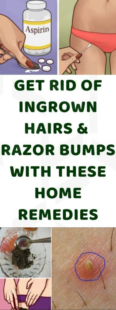 Hairs that curl around and grow back into the skin without rising up are called ingrown hairs They can cause irritation and may be quite problematic Thus let us see some...