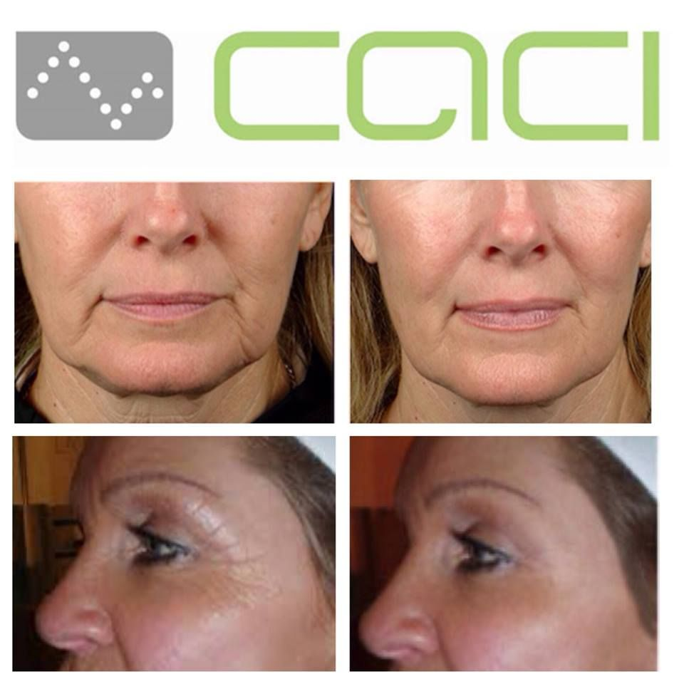 Before and after pictures of CACI...