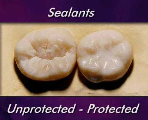Sealants are thin layers of resin that are placed on the pits, fissures, and grooves of molars to prevent decay on these surfaces. Although they're primarily used for cavity prevention in kids, dental sealants can be a good choice for adults, too.