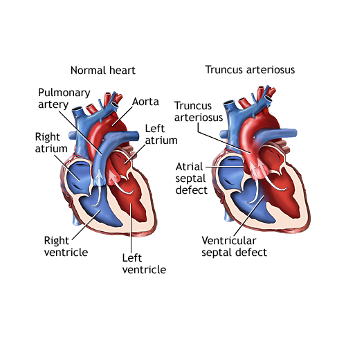 Tricuspid atresia is a heart defect present at birth congenital in tricuspid atresia is a heart defect present at birth congenital in which one of the valves tricuspid valve between two of the hearts chambers isnt ccuart Gallery
